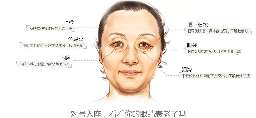如果皮肤进一步下移,就产生 眼袋,眼皮下垂,眼睛就变成本角眼了.