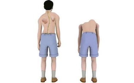 强直性脊柱炎是什么