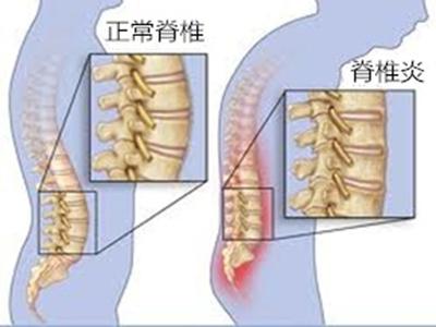 强直性脊柱炎是什么?